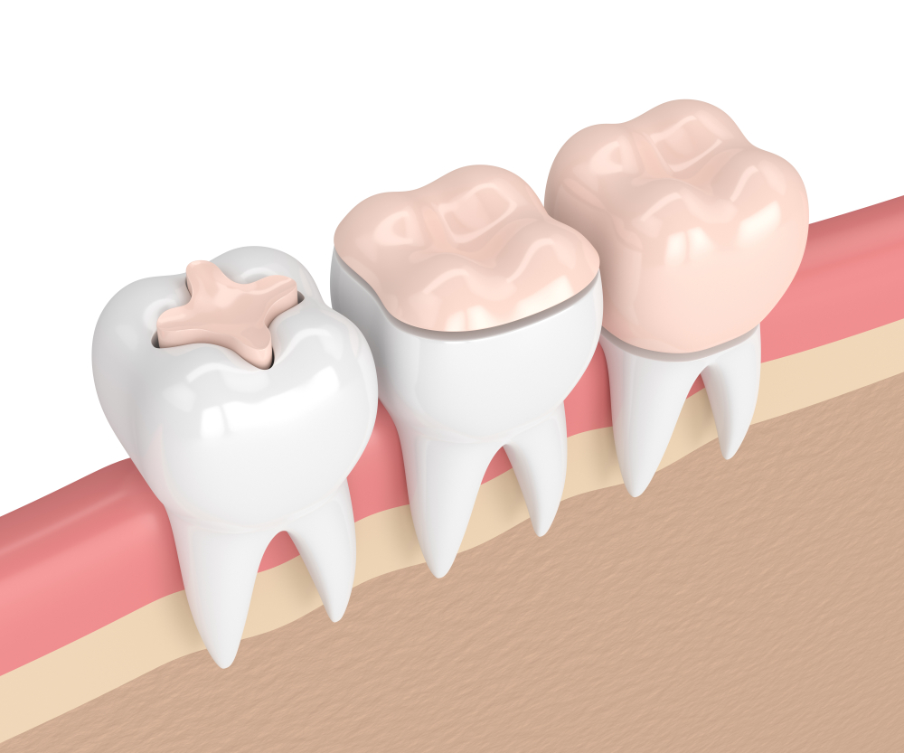 Dental Treatments 49