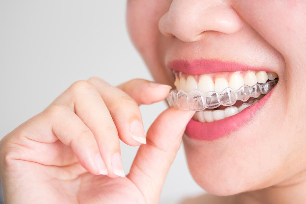 Orthodontics 15